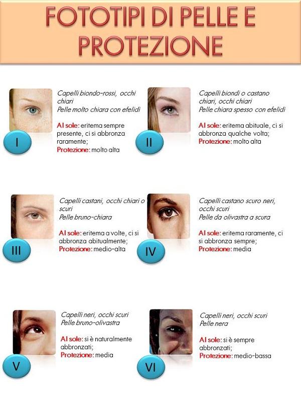 Le ragioni di pigmentary notano su una fronte